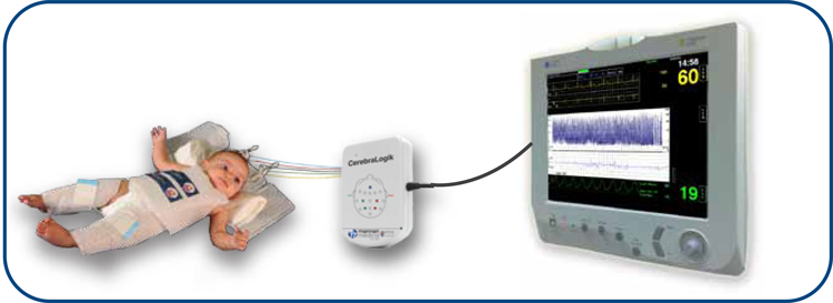 CerebraLogik Electroencephalographic (EEG) monitoring Dual Channel EEG and aEEG - New Medical Brisbane Australia