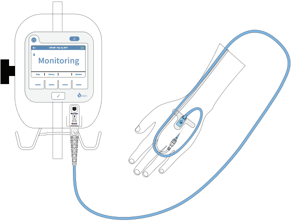 ivWatch patient arm diagram. I.V. monitoring device