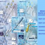 Breast Biopsy and Localisation
